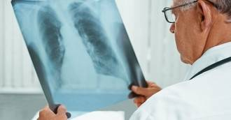 Los expertos alertan del peligro mortal que representa la neumonía